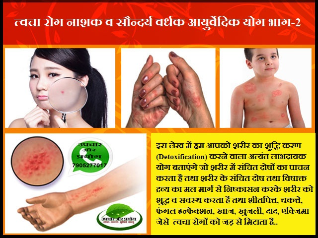 त्वचा रोग नाशक व सौन्दर्य वर्धक आयुर्वेदिक योग भाग-2