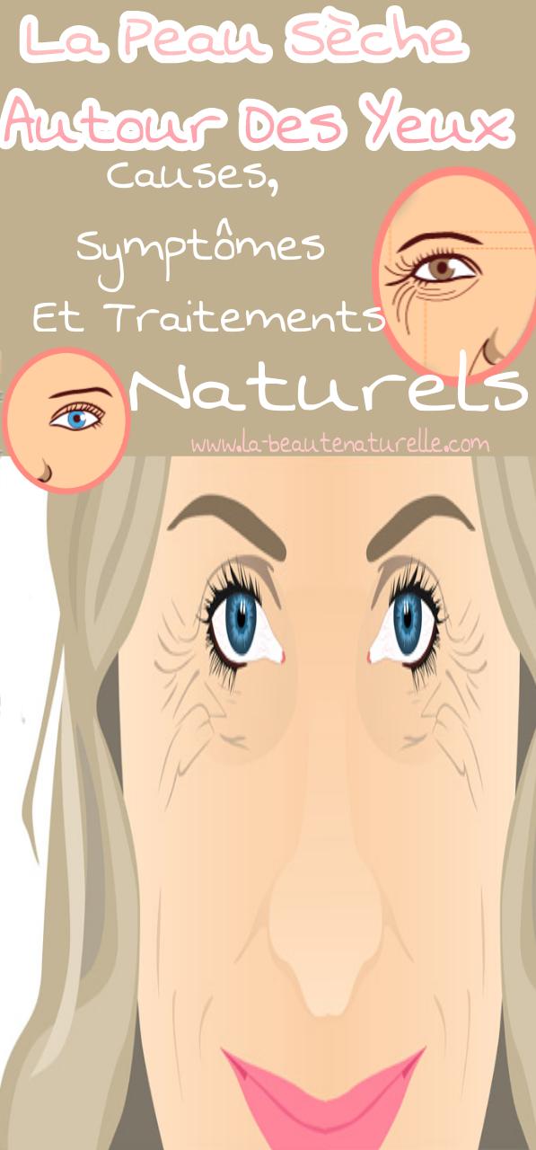 La peau sèche autour des yeux: causes, symptômes et traitements naturels