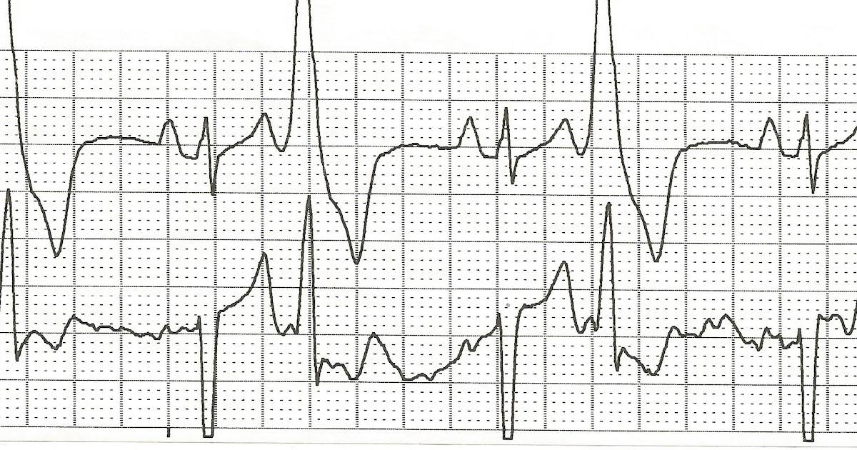 Float Nurse: Practice ECG Rhythm Strips 92