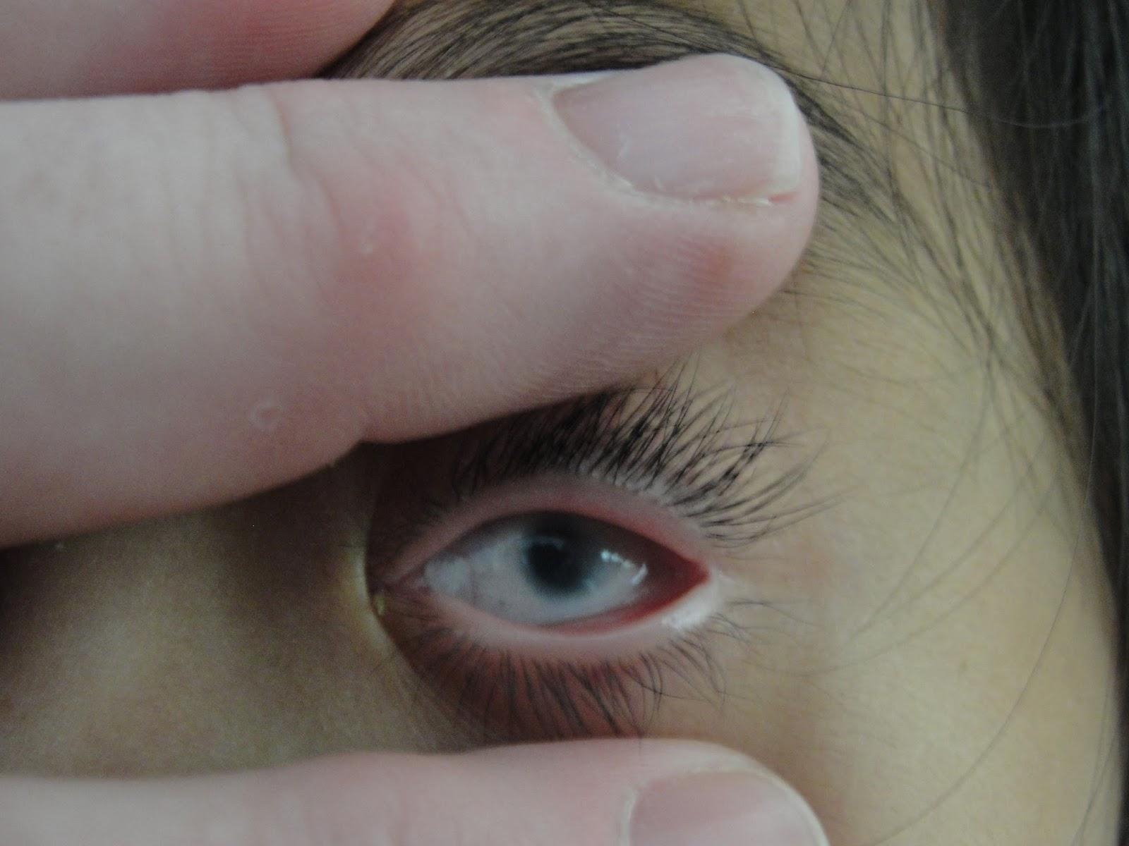 Raising an army of Eight: Jenna's eyes--long