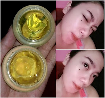 Jelly Yellow Botox Whitening - Magic Jelly - Arbutin Kojic Jelly Whitening