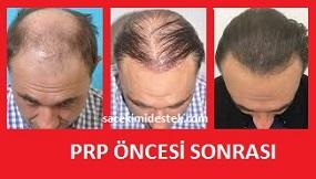 prp saç tedavisi yaptıranlar 4