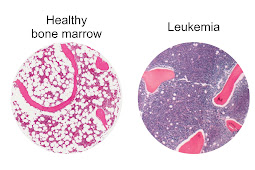 Different Cells Producing Leukemia