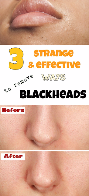 3 strange but effective ways to remove blackheads