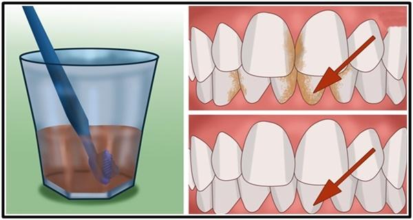Cara Menghilangkan Plak Atau Karang Gigi Serta Memutihkannya Secara