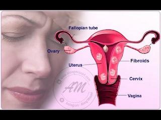Fibroid - Ancaman Buat Wanita Masa Kini