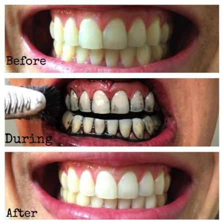 turbo carbon teeth whitening berkesan