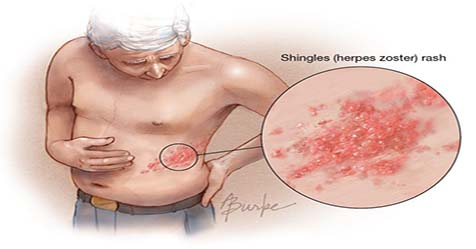 What Causes Shingles Symptoms and Treatment