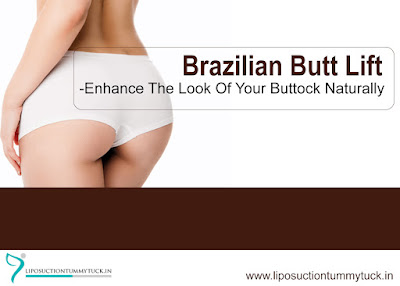 https://www.liposuctiontummytuck.in/butt-augmentation.html