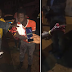 """See What Banger """"Knockout"""" Did To A Man's Hand Yesterday(Graphic Photos)"""