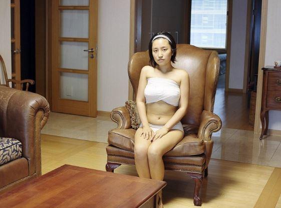 Gambar Mengerikan Selepas Melakukan Pembedahan Plastik