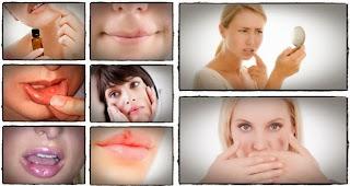El-Herpes-Genital-Qué-És-Conexión-Con-Herpes-Labial