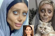 This Woman Is Like Zombie, 50 Times Face Operation To Be Like Angelina Jolie