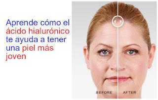 ácido-hialuronico-piel-joven