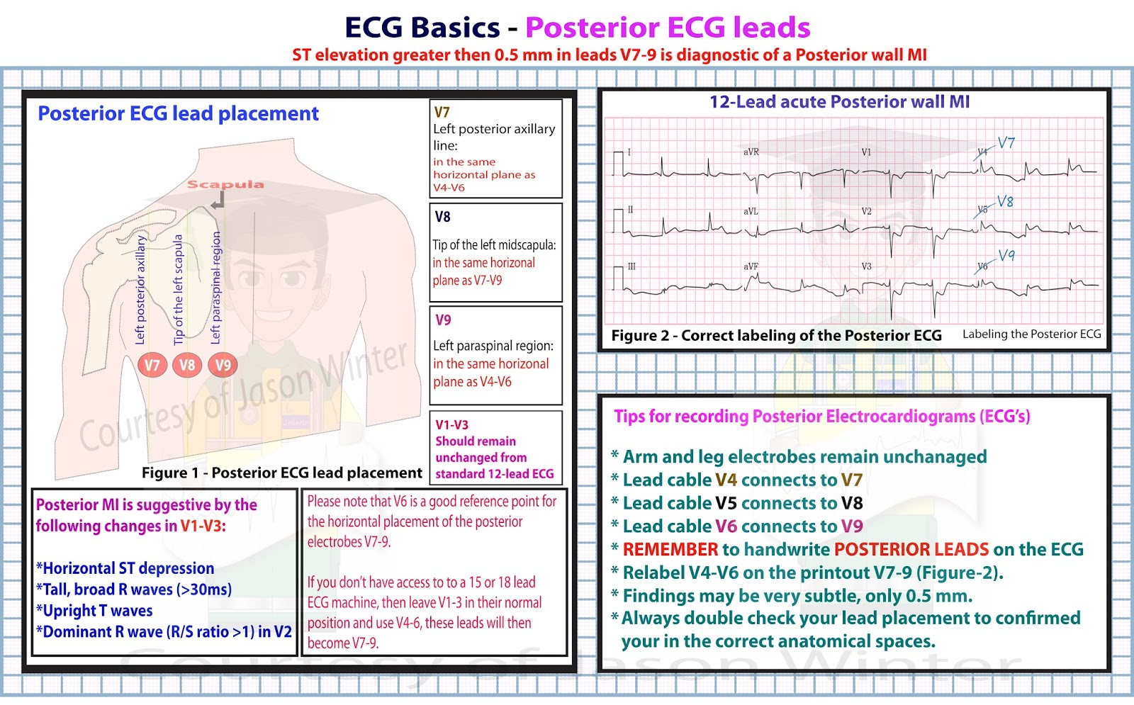4 Lead Ekg Placement Diagram Sunvic Mid Position Valve Wiring Ecg Educator Blog Posterior