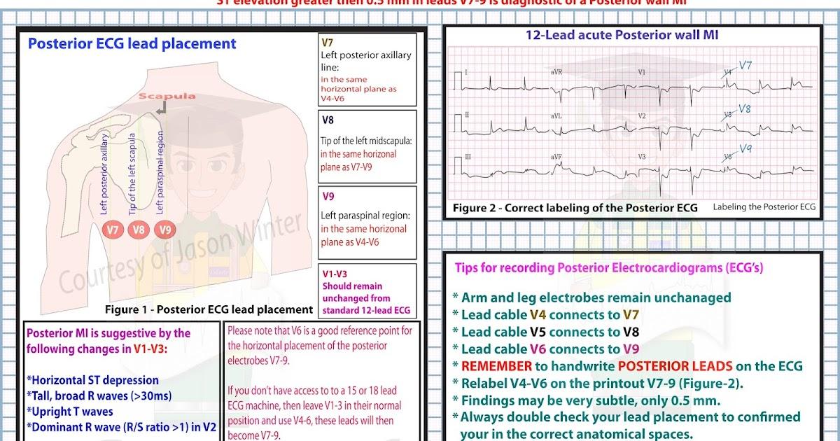 Nett Relationship Of 12 Lead Ecg To Coronary Artery Anatomy ...