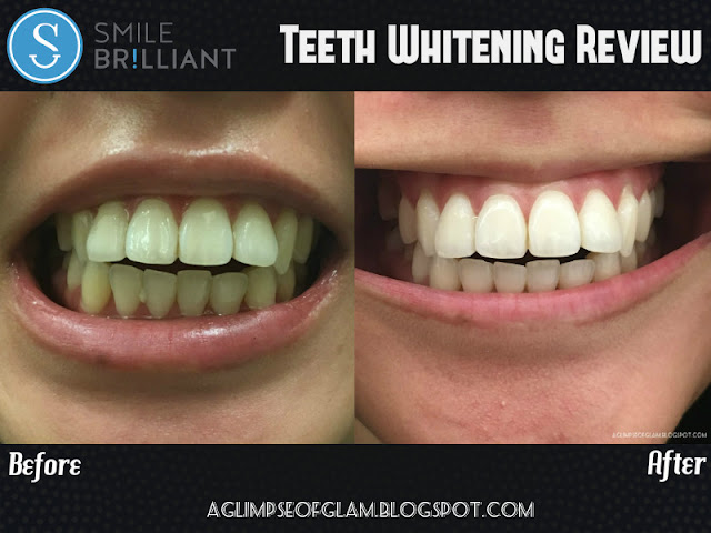 A Glimpse of Glam: Smile Brilliant Teeth Whitening Kit Review - Andrea Tiffany