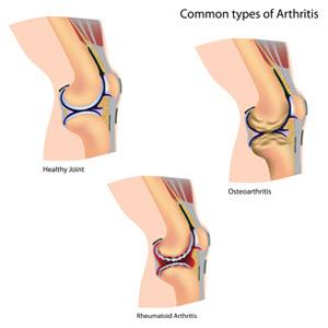 http://drsantpure.com/arthritis-osteoarthritis.html