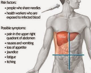 ஹெப்படைடிஸ் பி – Hepatitis B ஹெப்படைடிஸ் - பி என்ற வைரசால் உண்டாகும் நோய்த்தொற்று இது. கடுமையான கல்லீரல் வீக்கம், நாட்பட்ட கல்லீரல் நோய், கல்லீரல் செயலிழப்பு, கல்லீரல் அரிப்பு, கல்லீரல் புற்று ஆகியவற்றை உண்டாக்கும். வைரசால் உண்டாகும் கல்லீரல் வீக்கத்தில், இது மிகவும் அபாயகரமானது. குறுகிய கால நோய் தொற்றினை அக்யூட் ஹெபடைடிஸ் பி (Acute Hepatitis B) என்பர்.  ஹபடைடிஸ் தொற்று கண்ட தோராயமாக 10 சதம் மக்களில் இவ்வகை நோய் நீண்ட நாட்கள் பாதிப்பு இருக்கும்.   ஹபடைடிஸ் பி நோய் கண்டவர்களில் பலருக்கு இந்நோய்க்கான அறிகுறிகள் இருக்கலாம் (Symptomatic Hepatitis B) ஆனால் சிலருக்கு இந்நோயின் அறிகுறிகள் தெரிவது இல்லை ( Asymptomatic Hepatitis B)  இவ்வகை அறிகுறிகள் இல்லாத நோயாளிகள், இந்நோயினை சுமந்து (Hepatitis B Carrier)  பிறருக்கு பரவச்செய்கின்றனர்.   ஹெப்படைடிஸ் – பி  நோய் தாக்கிய நபருக்கு, கல்லீரல் நிரந்தரமாக சேதம் அடையக்கூடிய வாய்ப்புகள் உண்டு. அவையாவன, சிரோஸிஸ் (Liver Cirrhosis) கல்லீரலில் ஏற்படும் பாதிப்பு மற்றும் கல்லீரல் புற்றுநோய் (Liver Cancer) வர வாய்ப்புண்டு.  ஹெப்படைடிஸ் – பி   நோய் தொற்ற காரணங்கள் ஹெபடைடிஸ் பி இரத்தத்தின் மூலமும் மற்றும் உடல் திரவங்கள் மூலமும் பரவுகிறது. கீழ்காணும் முறையிலும் நோய் தொற்று ஏற்படும்.   சுகாதார மையங்களிலும்  மருத்துவ தொழில் சார்ந்தவர்களும், நோய்கண்ட நபரின் இரத்தத்தை அல்லது உடல் திரவங்களை (உமிழ்நீர், விந்து, யோனி சுரப்பு) தொடுவதன் மூலமும், ஊசி குத்திய காயத்தாலும் மருத்துவர்கள், செவிலியர்கள் இவ்வகையான பாதிப்புக்குட்படுத்தப்படுகிறார்கள்.- Infections to the Doctors and medical staffs due to mishandling of infected  materials, including body secretions like, semen, vaginal discharge, saliva  நோய் கண்ட நபருடன் பாதுகாப்பு அற்ற முறையில் உடலுறவு கொள்வதால். Un protected sex with infected person,  நோய்வாய்ப்பட்ட நபரின் இரத்தத்தினை பிறர்கு செலுத்துவதின் மூலம், infected  blood transfusion   ஒரே ஊசியினை பலர் பகிர்ந்து கொள்ளும்போது, (போதை மருந்து பழக்கமுள்ளவர்கள், பாதுகாப்பற்ற முறையில் ஊசி பரிமாறி கொள்ளுதல்) Sharing of Needles and Injecions,  நோய் கிருமிகளை கொண்ட சுத்தமில்லாத உபகரணங்களை கொண்டு பச்சை குத்திக்கொள்ளுதல் மூலமாகவும்.- Infected Tattoo needles,  நோய்