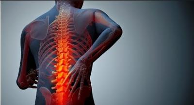 mengobati patah tulang belakang secara herbal