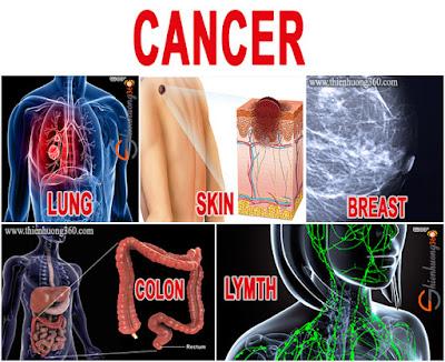 Ung thư phổi, ung thư vú, ung thư da, ung thư đại trực tràng và ung thư hạch là những loại bệnh ung thư phổ biến thường gặp nhất hiện nay