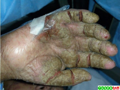 Thick scaly plaques of Norwegian scabies.