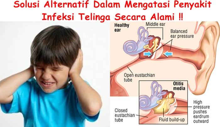 Obat Tradisional Infeksi Telinga