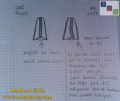 Kaudal septum deviasyonu nedir? - Kaudal septum deviasyonu belirtileri - Kaudal septum deviasyonu tedavisi - Kaudal septum deviasyonu ameliyatı - Kaudal septal deviasyon - Anterior septal deviasyon - Kaudal septoplasti - Açık teknik kaudal septum deviasyonu ameliyatı - Kaudal septum deviasyonu görselleri - Anterior septal dislokasyon - Açık teknik septoplasti ameliyatı - Açık teknik SMR ameliyatı - Açk teknik deviasyon ameliyatı