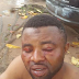 Photos: Two brothers allegedly brutalized by thugs in Edo State for defending 'helpless traders'