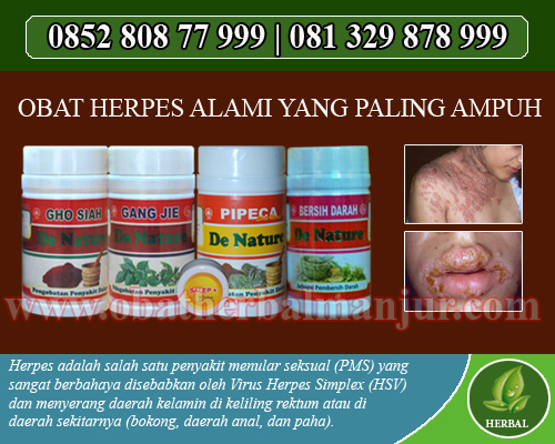 pengobatan herpes murah