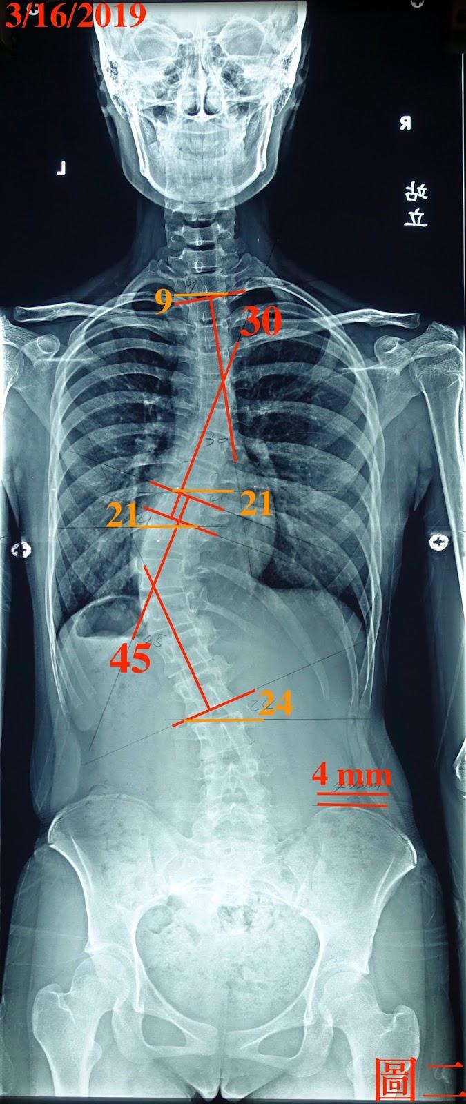 脊椎側彎, 脊椎側彎矯正, 脊椎側彎治療, 脊椎側彎 背架
