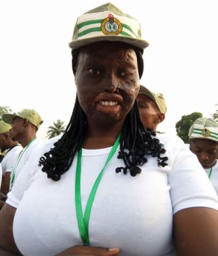 Lady Who Survived Acid Attack by Uncle's Wife Begins NYSC