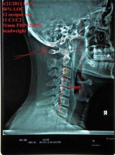 脊椎側彎, 脊椎側彎 會怎樣, 脊椎側彎惡化, 脊椎側彎矯正, 脊椎側彎復健