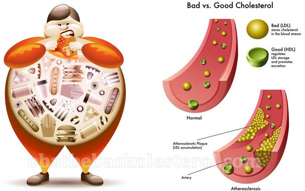 cara mengobati kolesterol tinggi