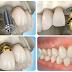 Cấy ghép implant như thế nào?