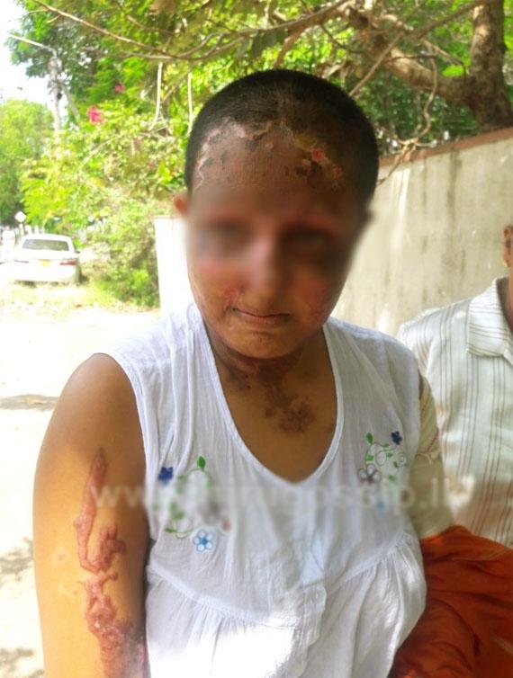 Man arrested over acid attack in  Kollupitiya