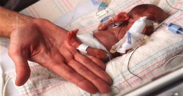 Penyebab serta Gejala atau Tanda-Tanda Bayi Terlahir Secara Prematur