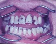 "<Imgsrc =""manchas-esmalte-por-fluorosis.jpg"" width = ""220"" height ""172"" border = ""0"" alt = ""Esmalte afectado por fluorosis."">"