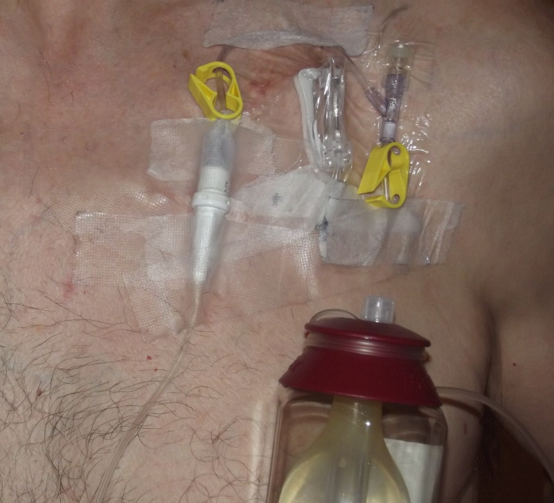 The rc catheter and dildo pissdrink - 3 6