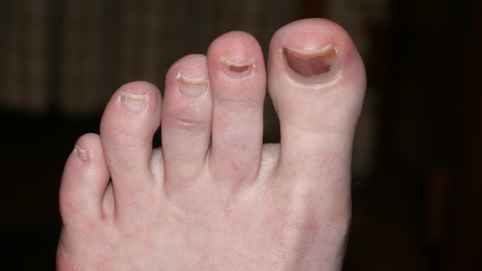 Foot Fetish Cause