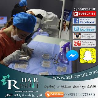 مركز هير ريزولت لزراعة الشعر في تركيا
