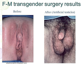 Female to male genital after change photo result