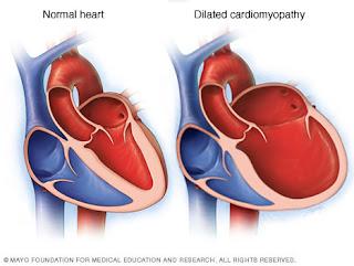 Kardiomiopati Dilatasi dan Pengobatannya