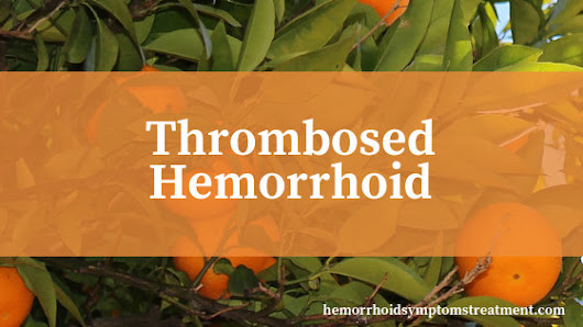 Thrombosed Hemorrhoid