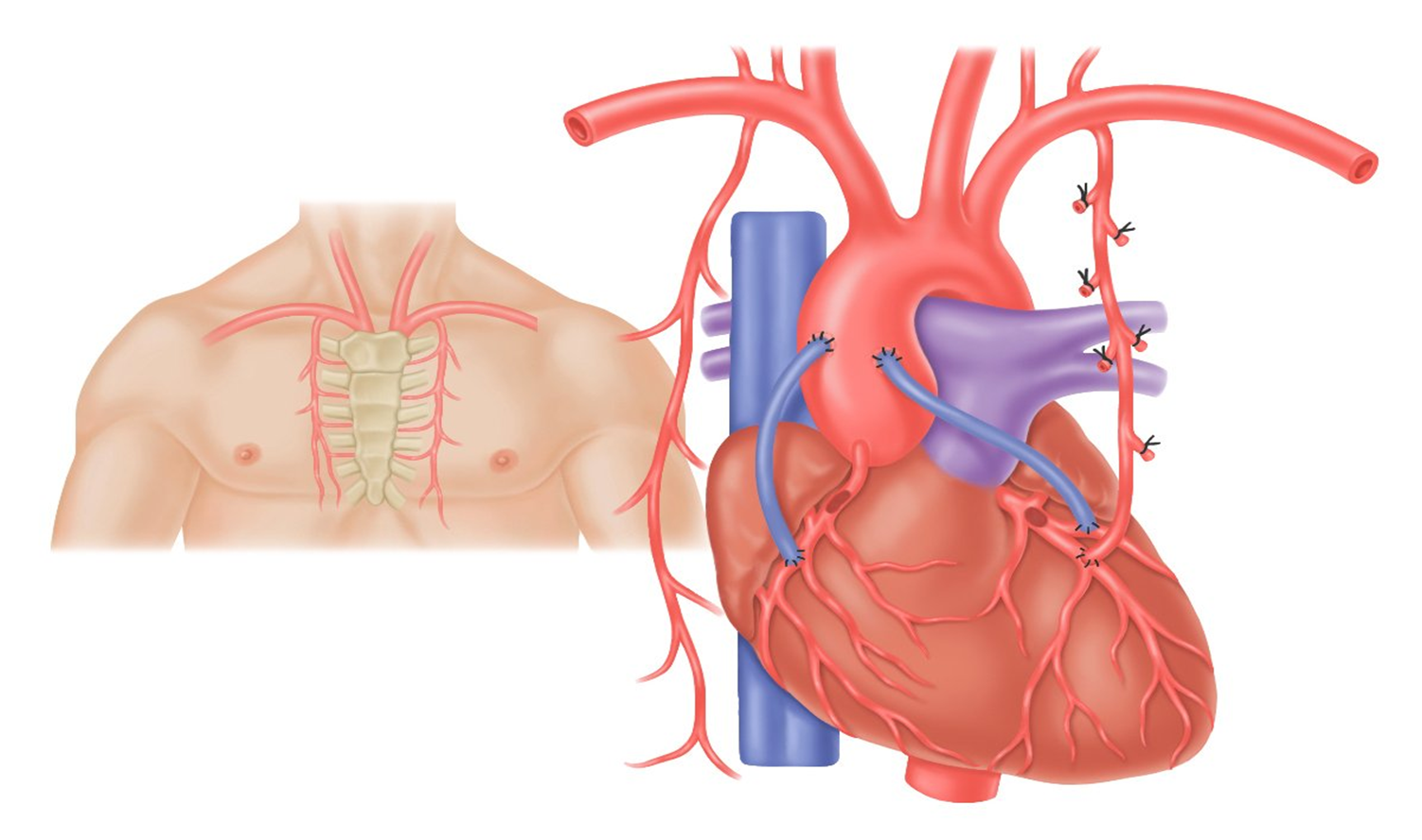 Diagram Of A Heart Bypass Graft Vrcd400 Sdu Wiring Tentang Jantung Asuhan Keperawatan Pasien Dengan Cad Pre