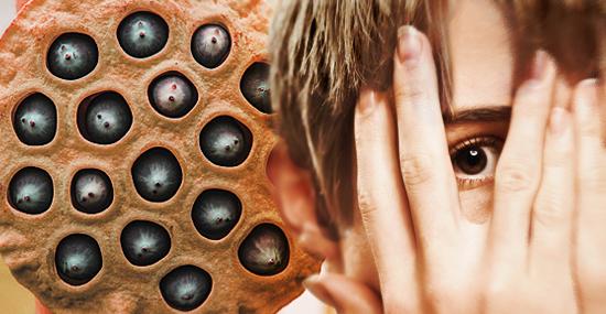Medo de buracos? Teste simples pode revelar a tripofobia
