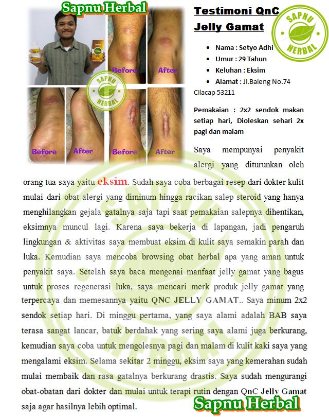 Obat Gatal Akibat Jamur Di Selangkangan yg TERBUKTI Manjur!!