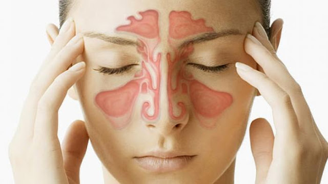 tips atasi sinusitis