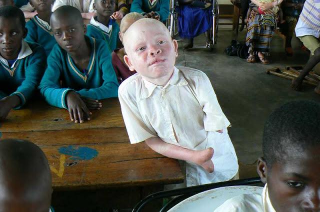 Mira el infierno que viven los albinos en África. Son el platillo más caro del mundo… 8
