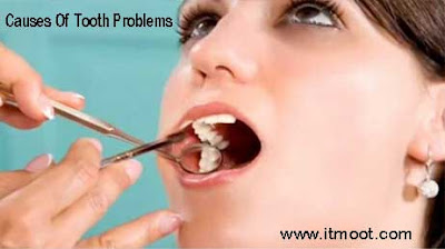 Causes Of Tooth Problems